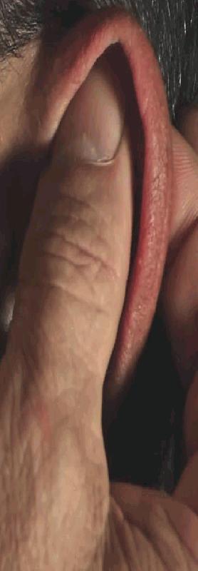 Oor massage