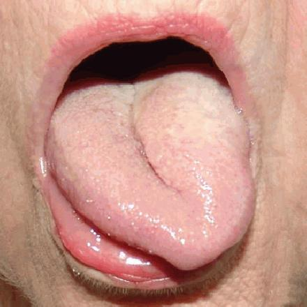 Meer keelkanker door orale seks